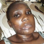 How gunshot by policeman fiancé slashed my sister's tongue, all teeth to be removed – Sibling