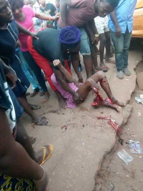 Graphic photos: Bus crushes young girl