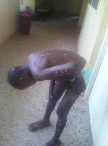 Nigerian father brutalizes son allegedly for misplacing the key to their house