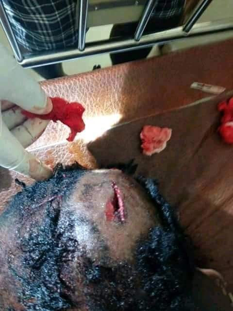 Woman accidentally shot in the head by suspected police officer in Delta State (photos)
