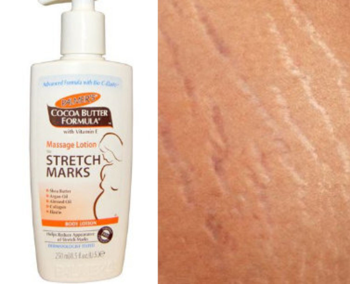 5 Top Ways To Get Rid Of Stretch Marks Today Within Nigeria