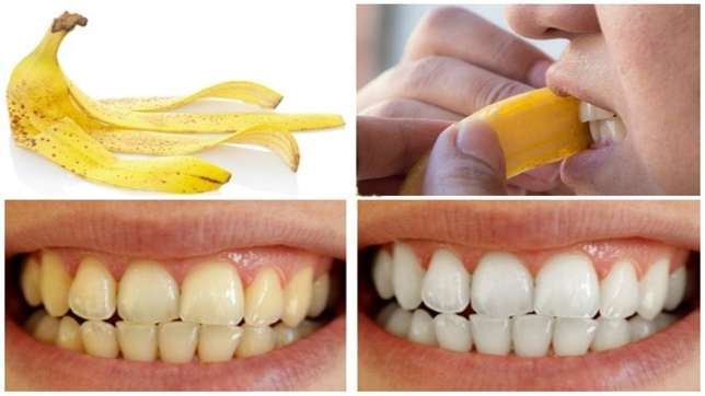 4 Ways to whiten the teeth using banana peels » Within Nigeria