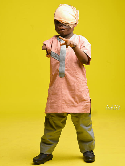 Young burn victim who lost his sight and arm in fire accident defies the odds to survive (photos)