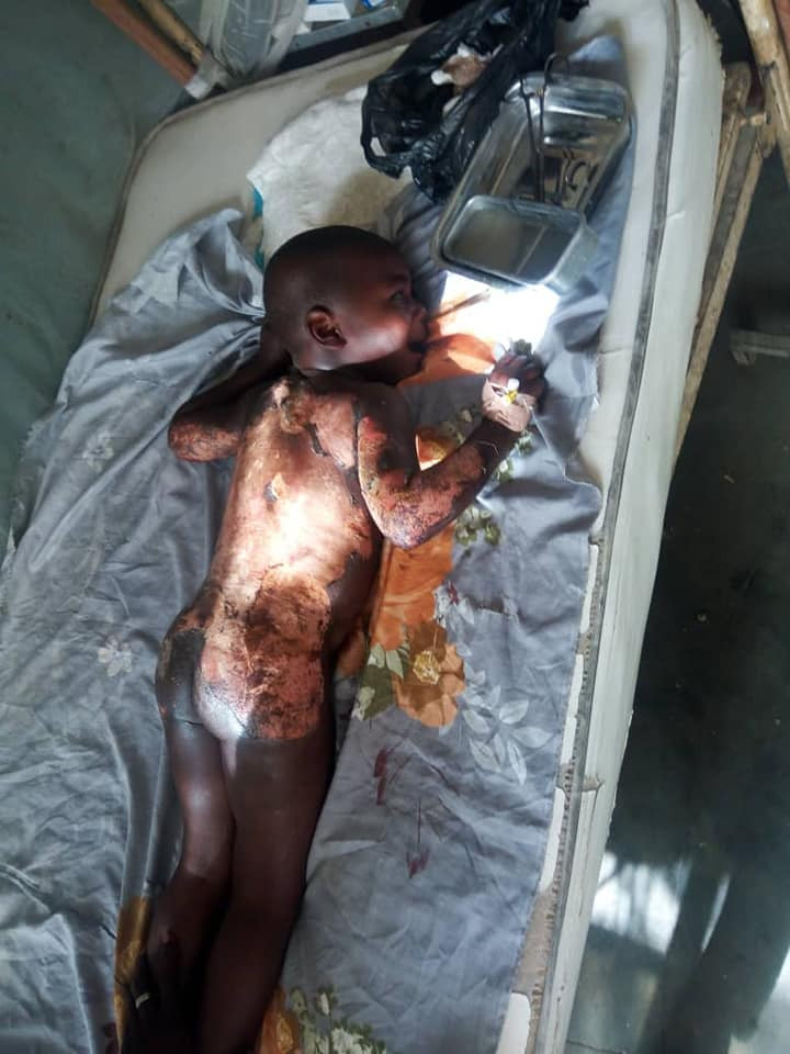 Graphic: Woman scalds body of her step son with hot water in Adamawa state