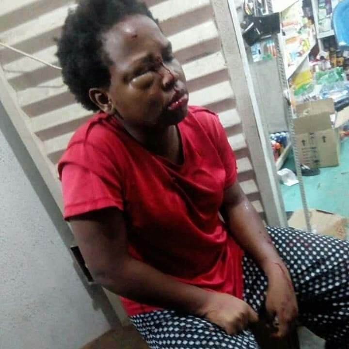 FUPRE female student robbed, stabbed multiple times (Photos)