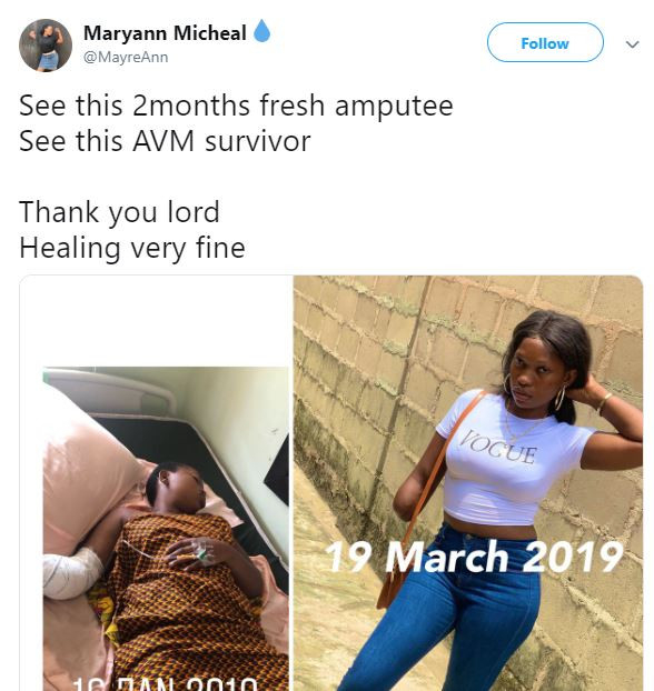 Nigerian lady whose arm got amputated two months ago shares lovely recovery photo