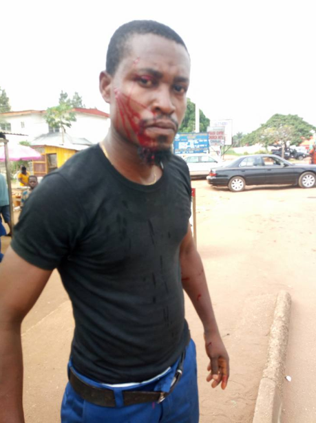 "Man accuses ""police officer"" of inflicting injury on him over failure to pay ?100 bribe"