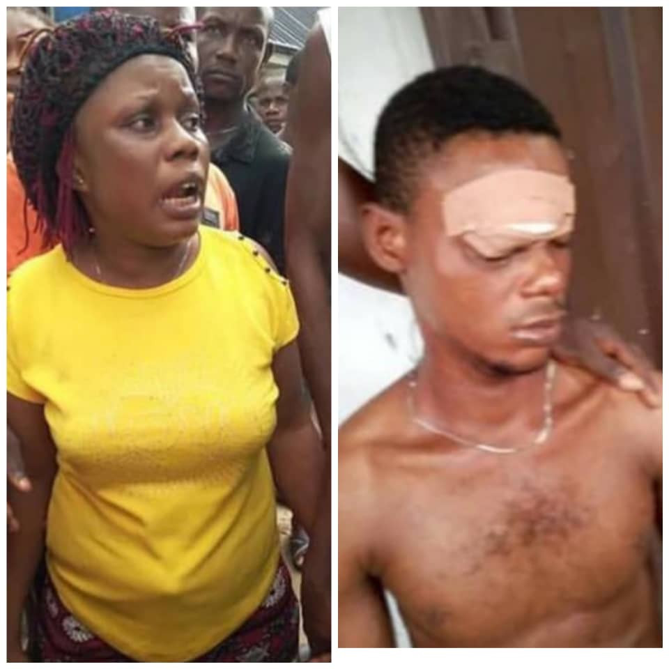 Photos: Woman arrested for stabbing her boyfriend in the eye after he received a phone call from another lady