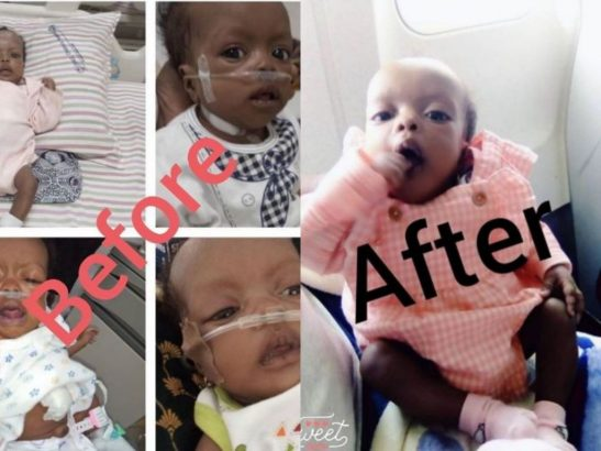 Folorunsho Alakija appreciated for helping baby with hole in his heart