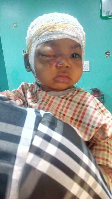 Image result for 13-MONTH-OLD BABY ATTACKED BY SOLDIERS PITBULL SURVIVES