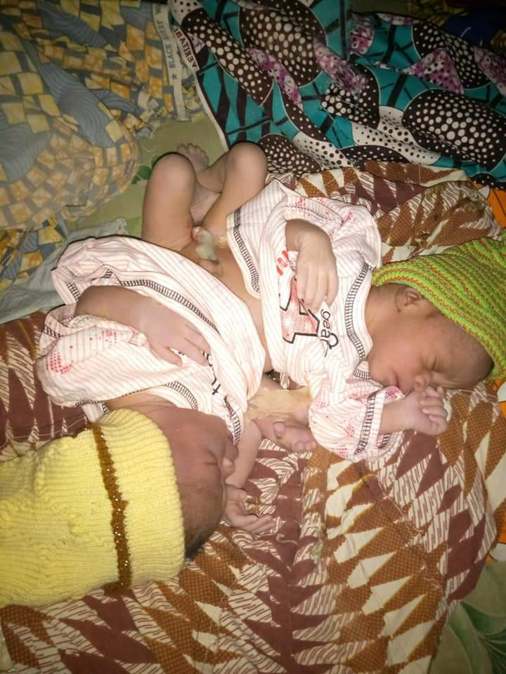 Woman gives birth to conjoined twins in Kaduna