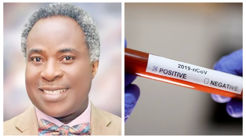 BREAKING: UCH CMD tests positive for coronavirus