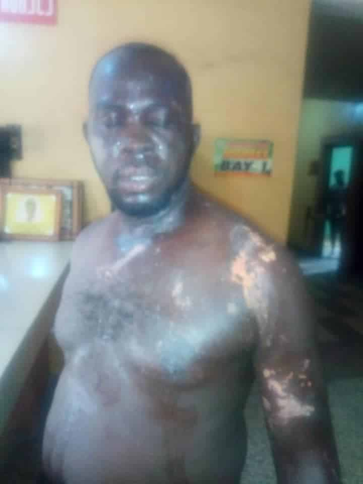Angry youths bath Policemen with 'acid' to avenge death of man shot in Anambra state