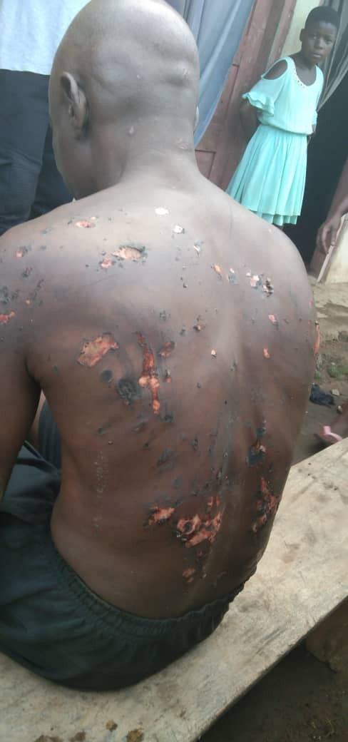 PHOTOS: SA to the Cross River State Governor allegedly burns his subordinates after dreaming he was betrayed