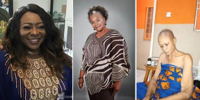 Gloria Young seeks financial support for Ify Onwuemene