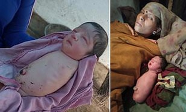 Baby Girl Born With No Arms or Legs Leaves Doctors Baffled