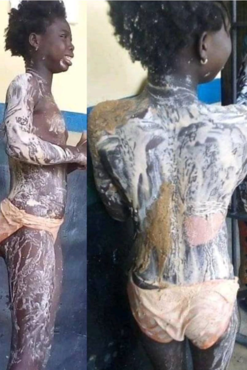 Police arrest aunt for pouring hot water on her niece in Kogi