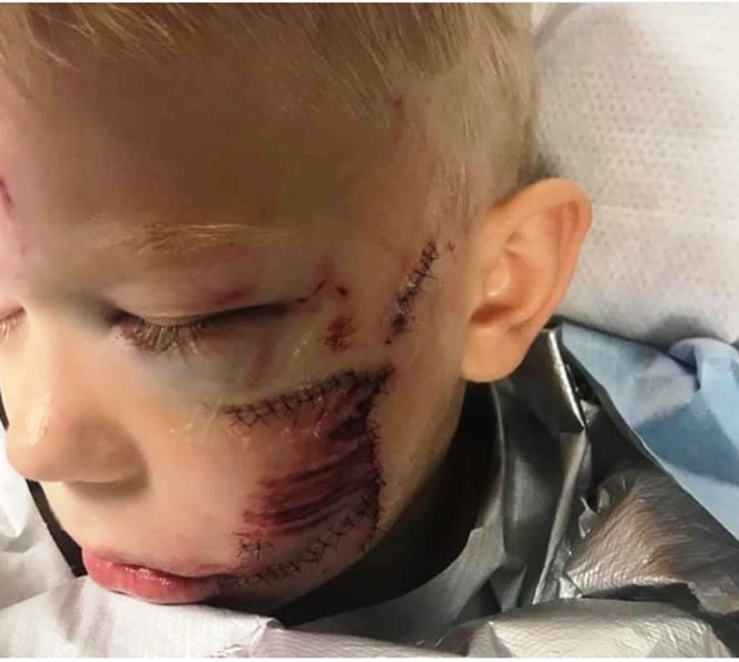 Boy left with 90 stitches after risking own life to save sister from dog attack