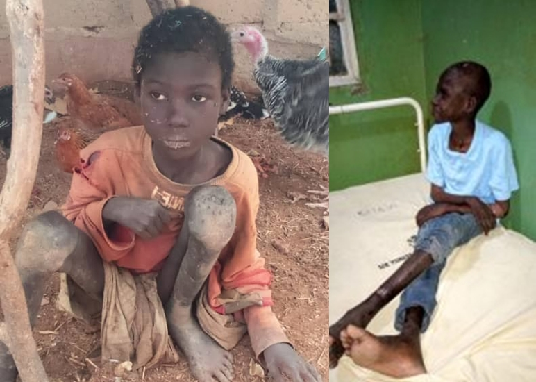 Epileptic boy chained for two years by his family, rescued in Kebbi