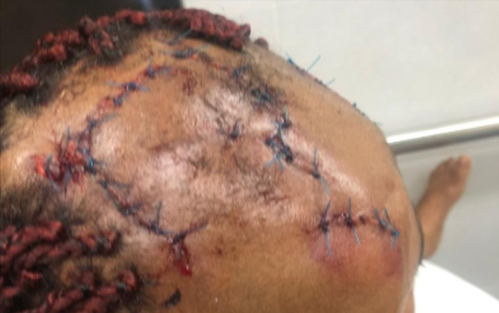 Brother allegedly brutalizes sister over father's property in Enugu