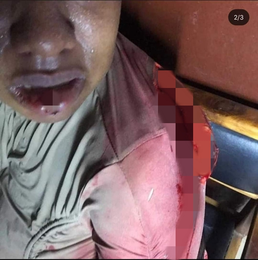Man Allegedly Butchers His Baby Mama Over Food In Imo