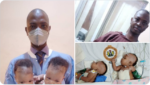 PHOTOS: Conjoined female twins separated at the University of Ilorin Teaching Hospital
